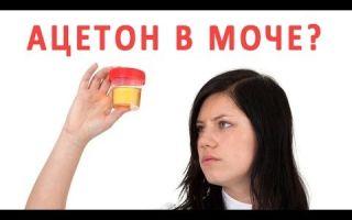 Ацетон в моче у взрослых — причины появления и методы лечения