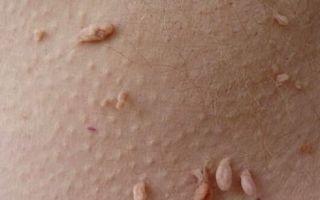 Папилломы на интимных местах — симптомы, причины, лечение
