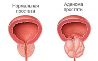 Частое мочеиспускание у мужчин — причины, диагностика и лечение