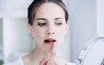 Кандидоз — что это, причины, симптомы, диагностика, лечение