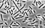 Что такое уреаплазма — особенности возбудителя инфекции