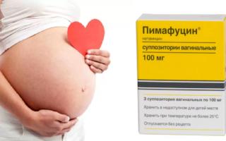 Профилактика молочницы у женщин — препараты, свечи, общие рекомендации