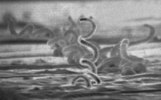 Беременность после сифилиса — какие могут быть осложнения, как правильно подготовиться?