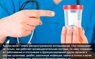 Соли в моче — причины повышения, методы лечения
