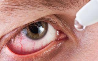 Гонококковый конъюнктивит — что это, причины, симптомы, лечение