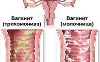 Хронический вагинит — особенности лечения заболевания