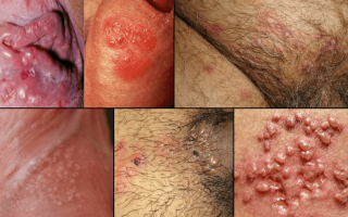 Герпес 2 типа: пути передачи, инкубационный период, симптомы и лечение