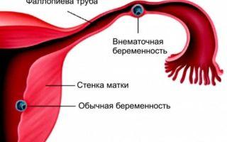 Коричневые выделения в середине цикла — причины возникновения и их лечение