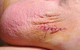 Способы лечения варикоцеле, нужна операция или нет