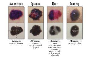 Что такое папиллома, какие у неё симптомы, и как она выглядит?