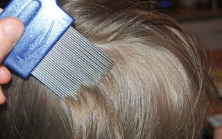 Как выглядят вши у человека в волосах?