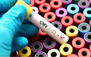 Цитомегаловирус в мазке — что это значит, нужно ли лечить