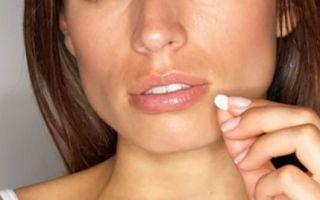 Гонорея у женщин — симптомы, виды инфекции, диагностика, лечение