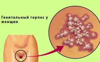 Генитальный герпес — что это за заболевание?