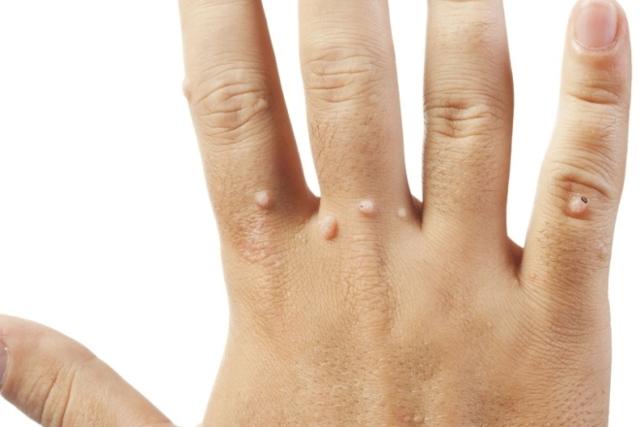 Как вывести бородавку на пальце руки - методы способы