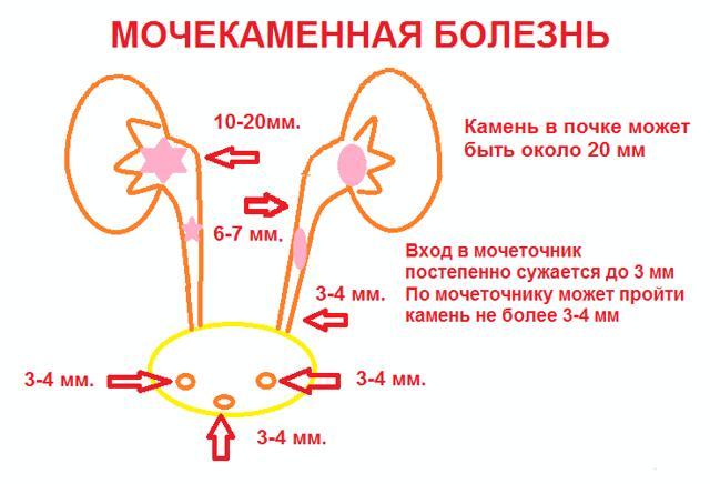 Мочевая кислота в моче - почему повышается и что делать?