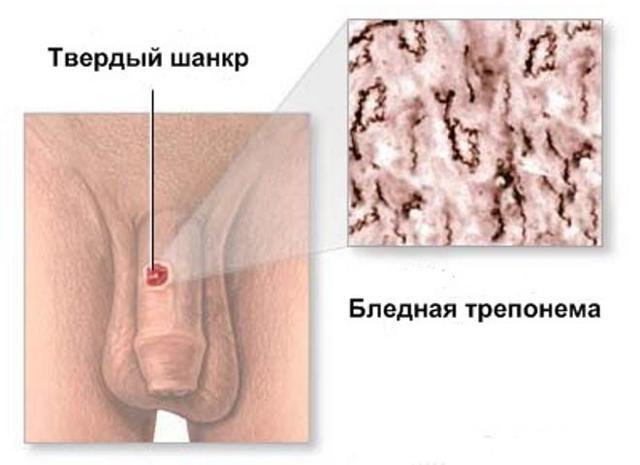 Сифилис у мужчин: первые признаки, симптомы и лечение