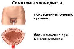 Оральный хламидиоз - что это такое и как передается