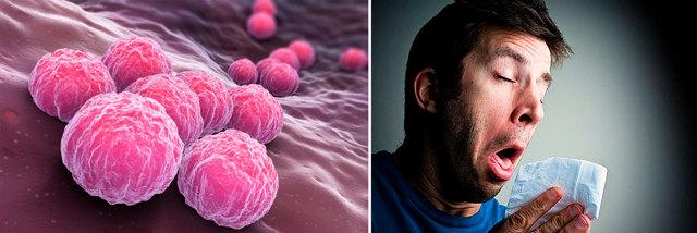 Хламидиоз — лечение, препараты, схемы и курсы эффективной терапии