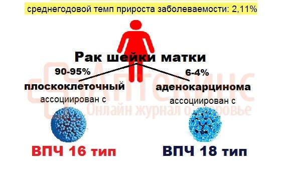 Вирус папилломы человека у женщин в гинекологии, 16 и 18 типы