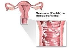 Кислый запах выделений у женщин: причины, диагностика и лечение