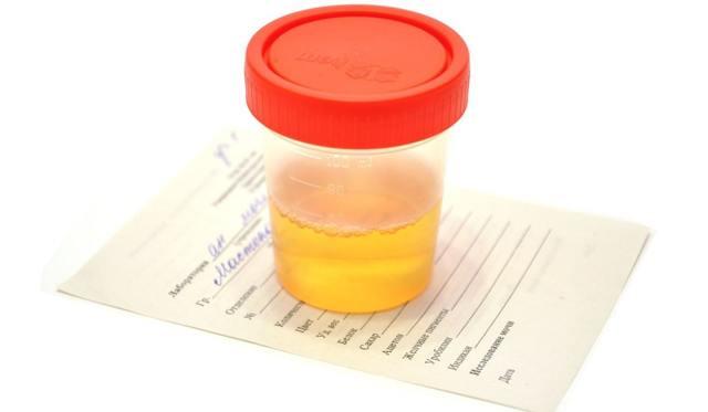 Эритроциты в моче в ребенка - причины появления, диагностика и лечение