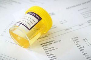 Норма белка в моче у мужчин, причины повышения, лечение высокого уровня протеинов