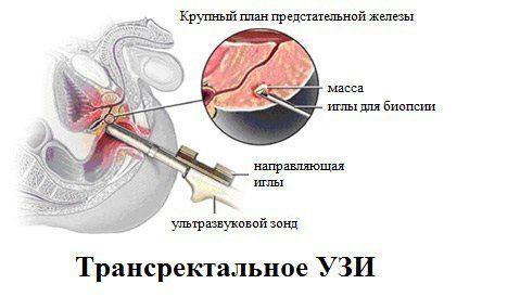 Стриктура уретры у мужчин: лечение, прогноз и эффективные методы профилактики повторного сужения