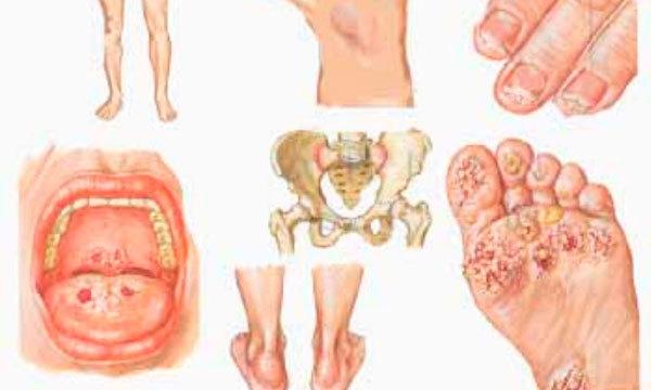 Хламидиоз у мужчин — симптомы и лечение, осложнения и последствия