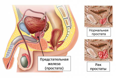 Боль при мочеиспускании у мужчин - причины, диагностика и лечение рези