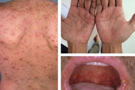 Как выглядит сифилис на лице и теле на начальных и поздних стадиях?
