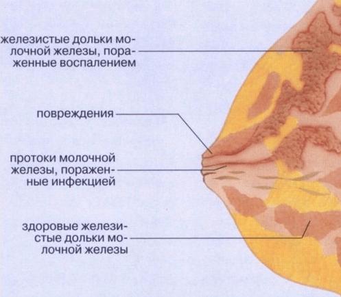 Молочница на сосках и грудных железах при грудном вскармливании