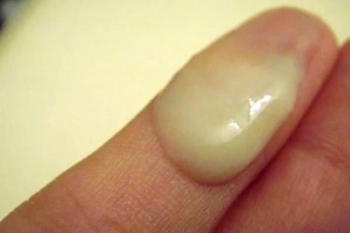 Выделения после овуляции - белые, желтые, коричневые, кровянистые