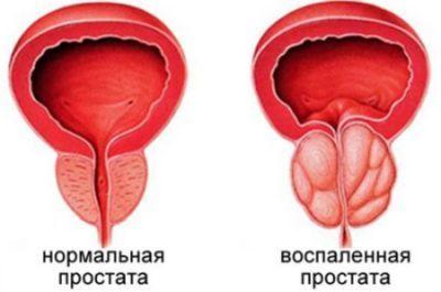 Жжение при мочеиспускании у мужчин - причины и методы лечения