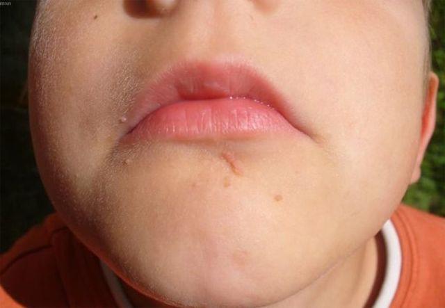Какой врач лечит папилломы - к кому идти при проблемах на коже