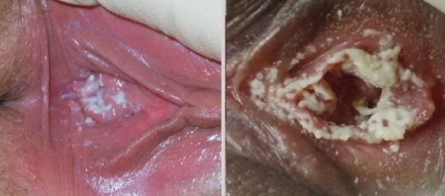 Как выглядит молочница у женщин, как определить заболевание по внешним признакам?