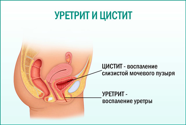 Цистит и уретрит у женщин: лечение различных форм заболеваний, их сходства и различия