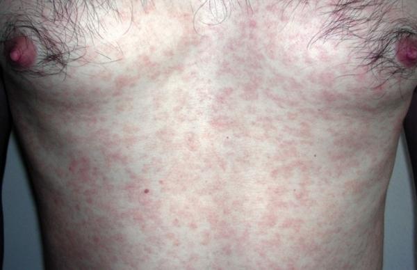Бытовой сифилис: пути заражения, симптомы и лечение