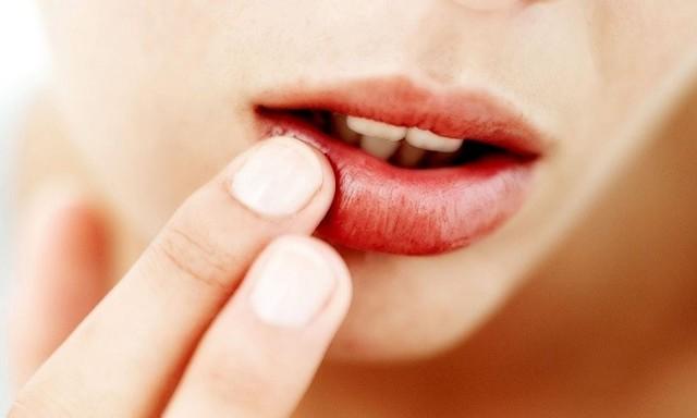 Лечение герпеса на теле медикаментами - мази, таблетки, список