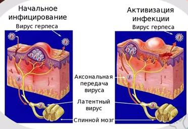Генитальный герпес у женщин: как выглядит, как проявляется и лечится