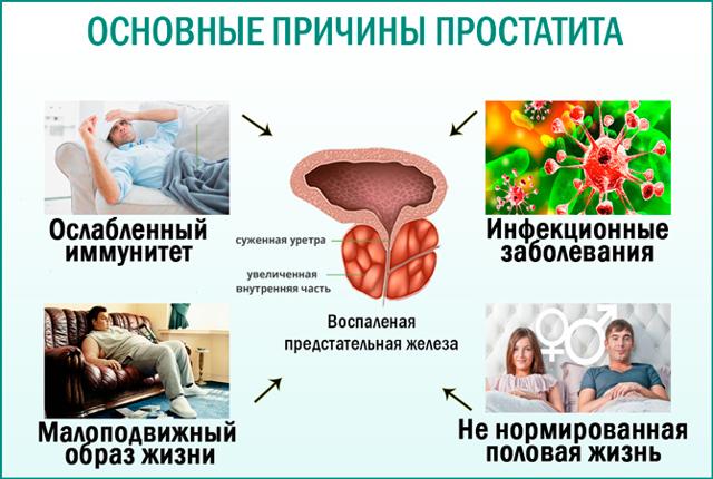 Профилактика простатита у мужчин в домашних условиях - препараты