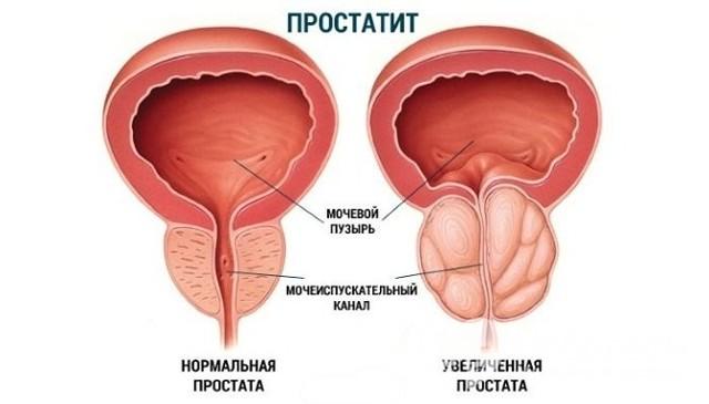Олигурия - что это такое, причины, симптомы и лечение