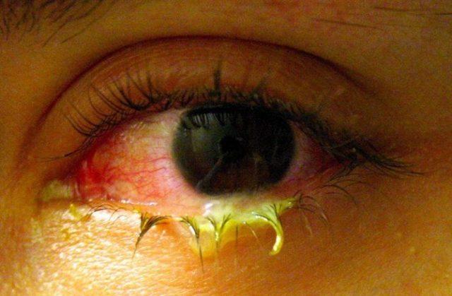 Последствия гонореи у мужчин и женщин