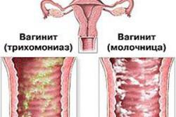 Острый вагинит: причины, проявления и лечение