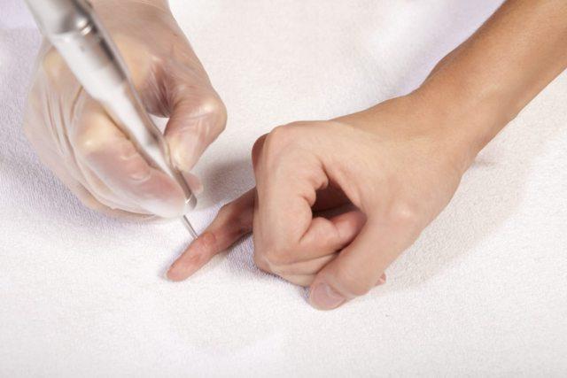 Как удалить бородавку - в домашних условиях, медицинские средства