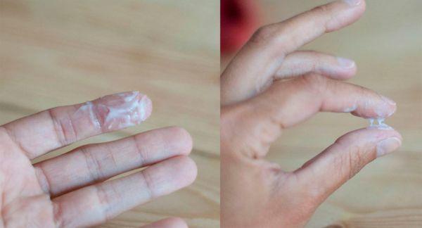 Выделения у женщин при молочнице - как определить заболевание?
