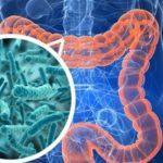 Кандидоз желудка - симптомы, диагностика и лечение