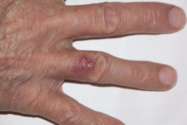 Бородавки на руках - причины и лечение, возможные последствия
