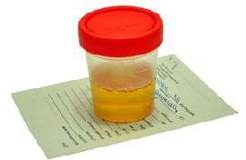 Как снизить белок в моче - лекарства, диеты и народные методы
