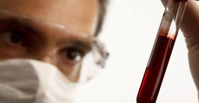 Какой гепатит передается воздушно-капельным путем - может ли такое произойти